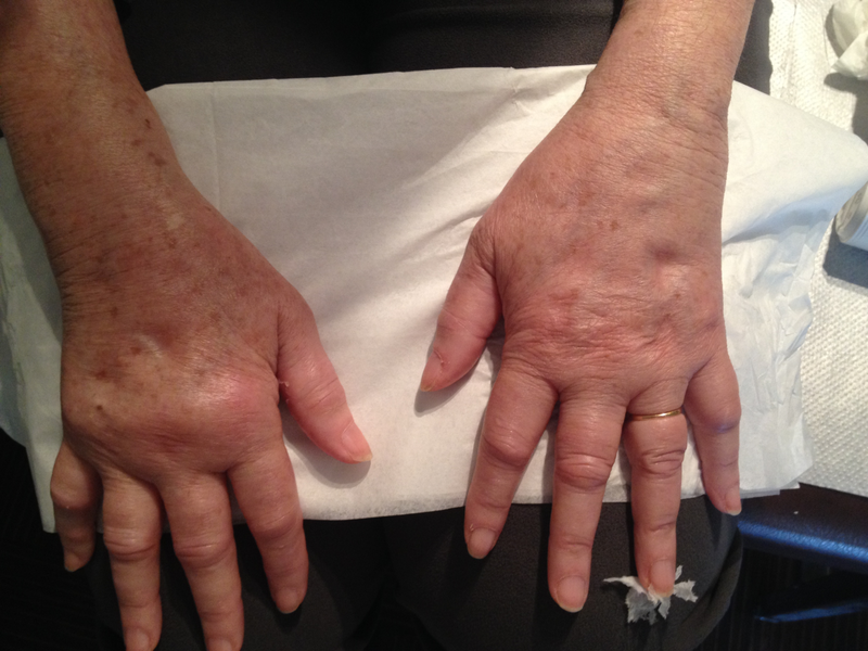 Bilateral pitting oedema in an...